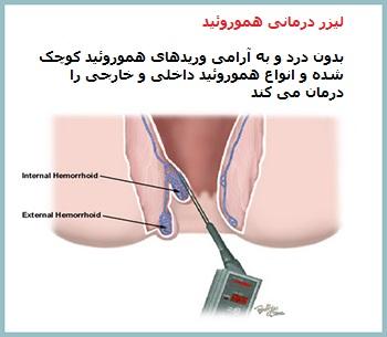 لیزر درمانی هموروئید یا لیزر درمانی بواسیر