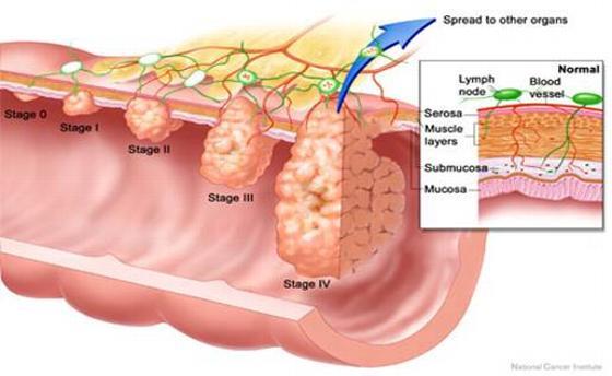 تشخیص هموروئید در کلونوسکپی