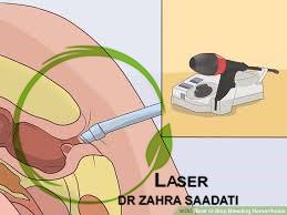 لیزر درمانی بواسیر