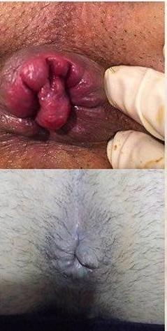 قبل و بعد هموروئید ترومبوزه