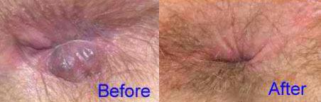 قبل و بعد لیزر هموروئید