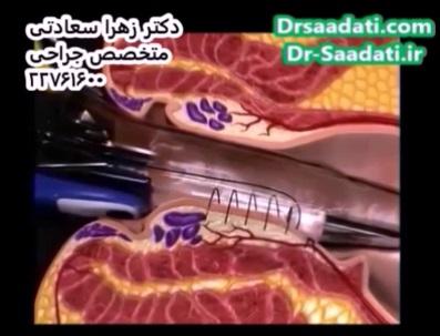 عمل جراحی هموروئید داخلی