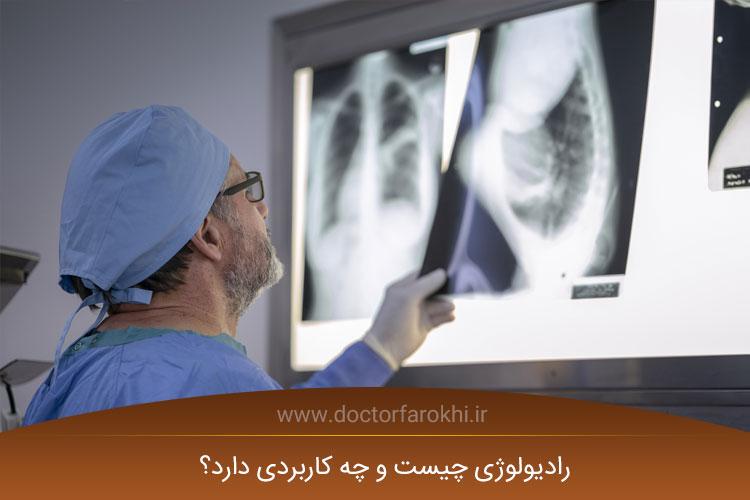 رادیولوژی چیست و چه کاربردی دارد