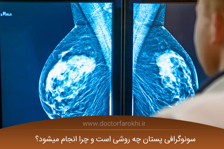 سونوگرافی پستان