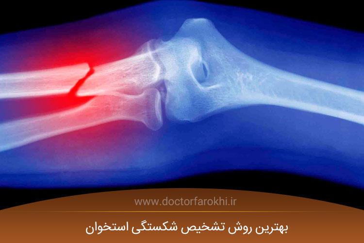 بهترین روش تشخیص شکستگی استخوان