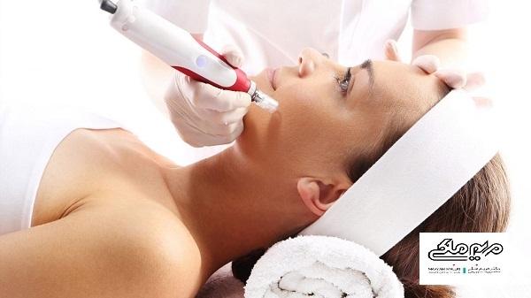 میرونیدلینگ یک روش جوانسازی پوست