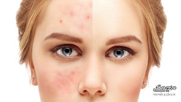 درمان لک و کک مک