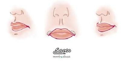 لیفت گوشه های لب با جراحی سانترال لب