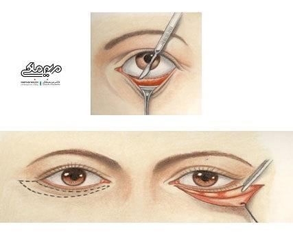 نحوه انجام جراحی پلک پایین