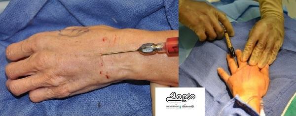عمل تزریق چربی دست