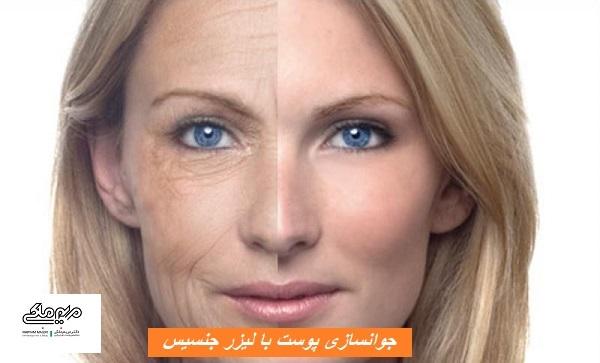 جوانسازی پوست با لیزر جنسیس