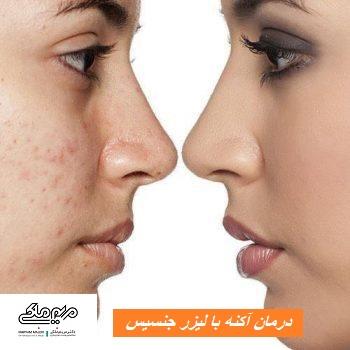 درمان آکنه با لیزر جنسیس