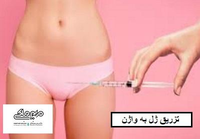 تزریق ژل به واژن