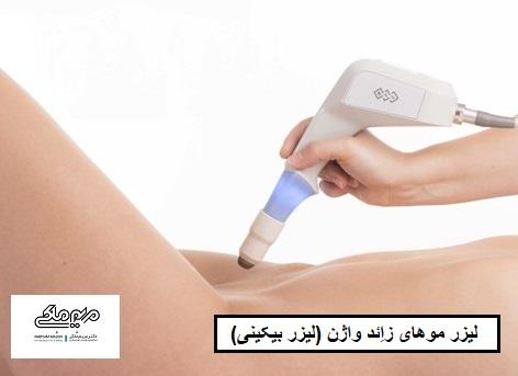 لیزر موهای زائد واژن (لیزر بیکینی)
