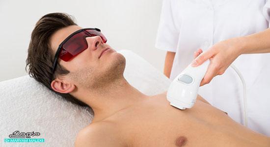 درمان موهای زائد با IPL