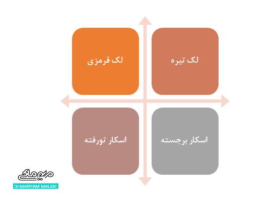 چهار نوع جوشگاه