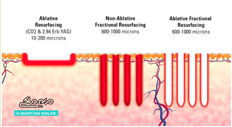 دیاگرام عملکرد لیزر فرکشنال، فرکشنال co2، لیزر co2 و erbium