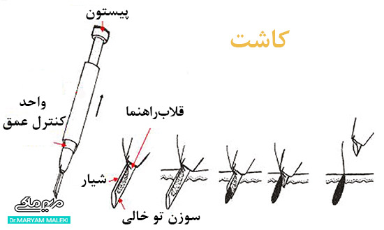 روش Stick and Place