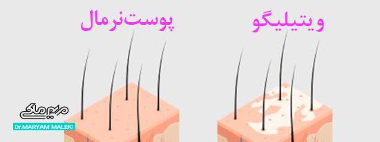 تفاوت پوست نرمال با ویتیلیگو