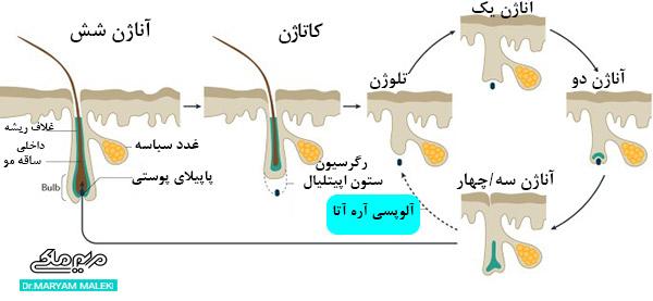 مراحل آلوپسی آره آتا