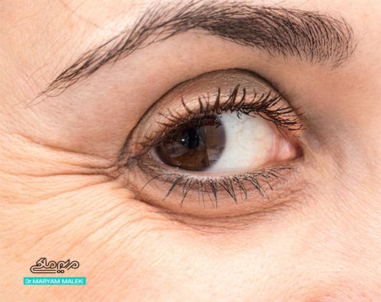 خطوط پا کلاغی در اطراف چشم