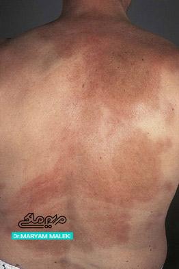 بیماری مورفه آ