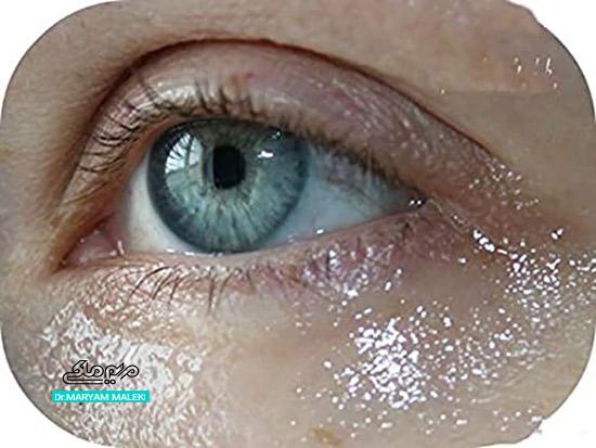 تزریق مزوژل در زیر چشم
