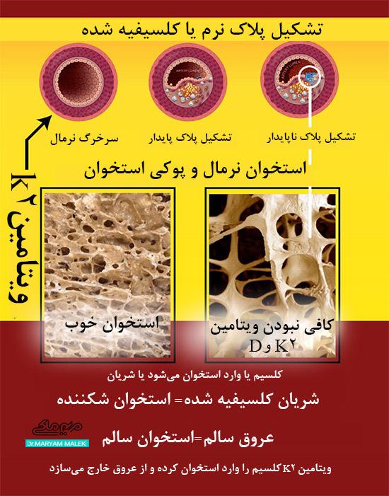 پوکی استخوان یا استخوان نرمال با ویتامین K2