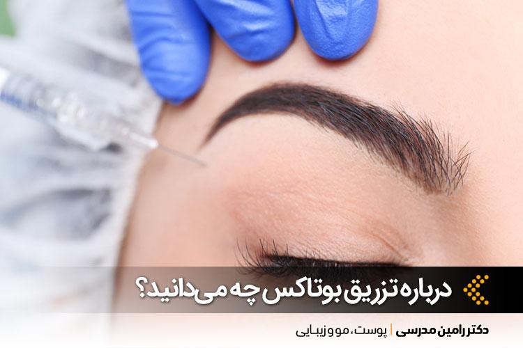 تزریق بوتاکس در اصفهان