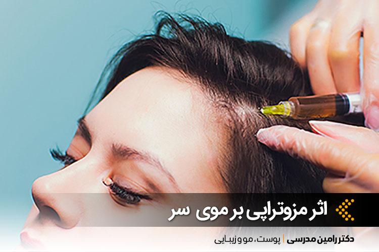 مزوتراپی در اصفهان