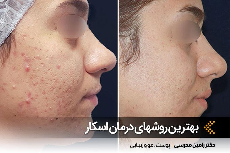 درمان جوش صورت در کلینیک دکتر رامین مدرسی