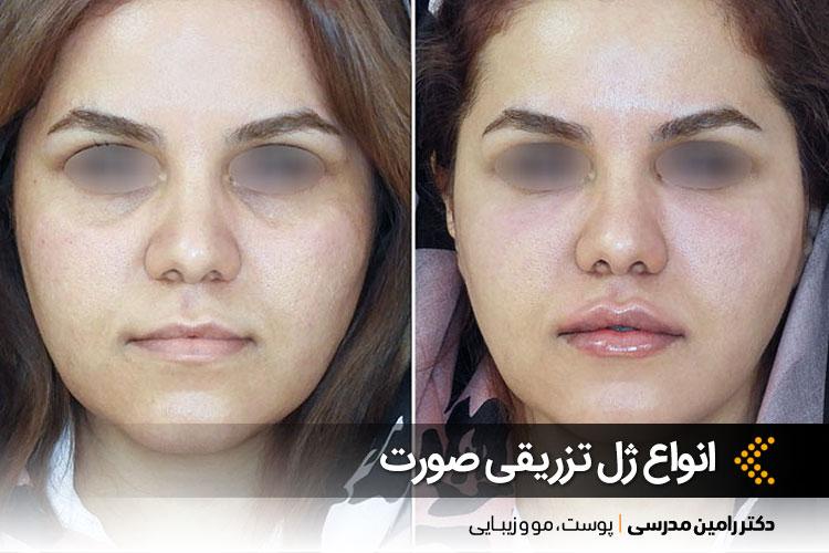 تزریق ژل لب و زیر چشم توسط دکتر رامین مدرسی در اصفهان