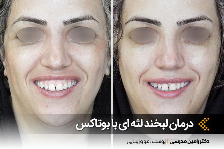 اصلاح لبخند لثه ای در اصفهان