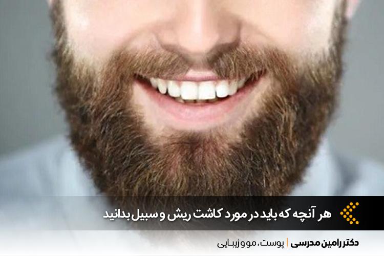 بهترین کاشت ریش و سبیل در اصفهان
