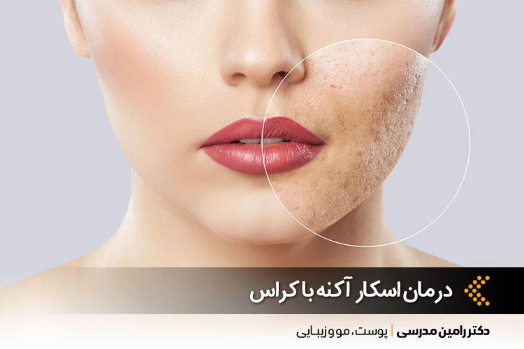 بهترین درمان اسکار آکنه در اصفهان ، دکتر رامین مدرسی