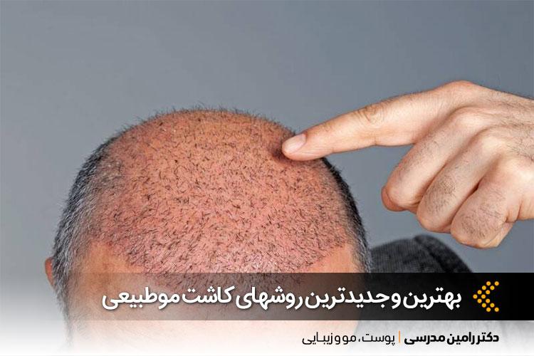 بهترین روش های کاشت مو در اصفهان