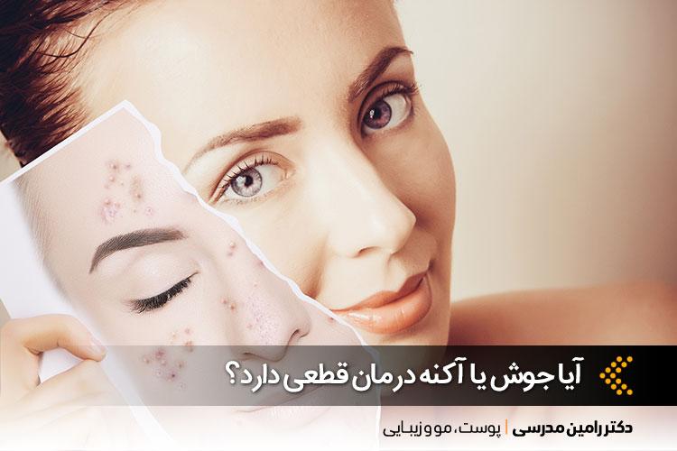 درمان جوش یا آکنه در اصفهان ، دکتر رامین مدرسی