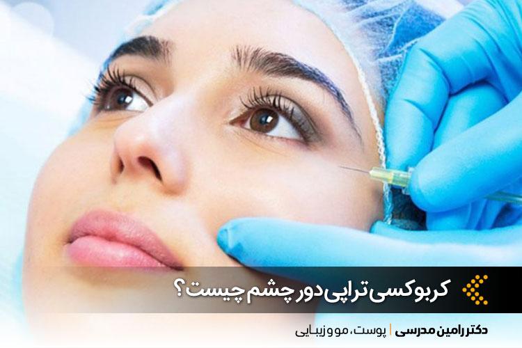 بهترین کربوکسی تراپی دور چشم در اصفهان ، دکتر رامین مدرسی