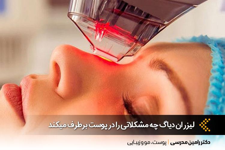 کاربرد لیزر ان دیاگ  بر روی پوست