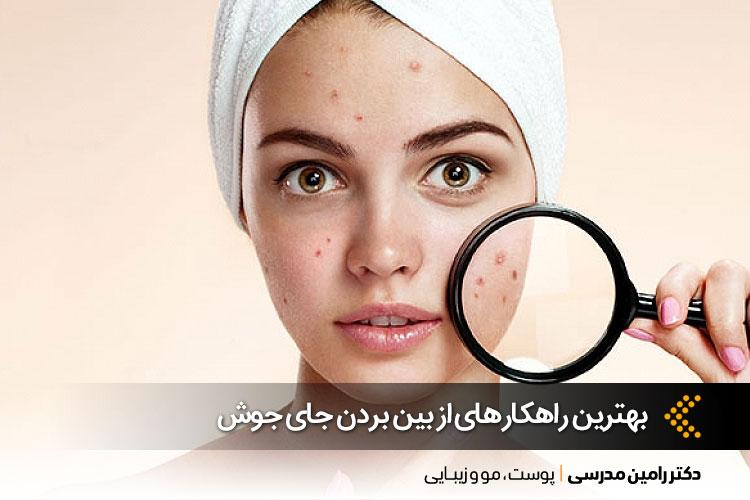 درمان جای جوش در اصفهان