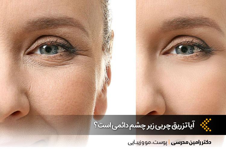 تزریق چربی زیر چشم در اصفهان