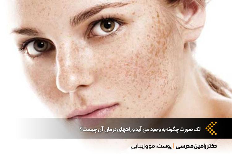 درمان لک صورت در اصفهان ، دکتر رامین مدرسی