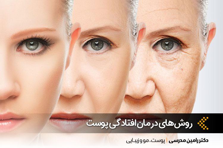 افتادگی پوست چگونه درمان میشود؟ | لیفت پوست در اصفهان | دکتر رامین مدرسی