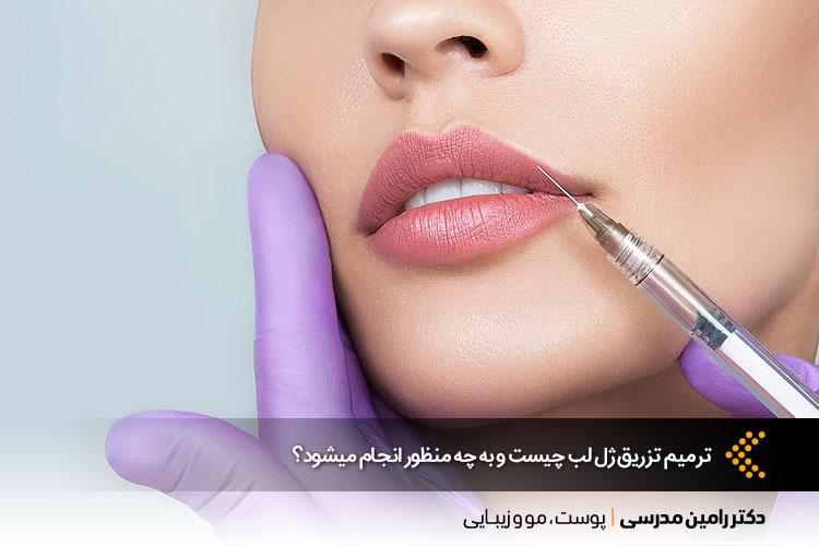 ترمیم تزریق ژل لب در اصفهان
