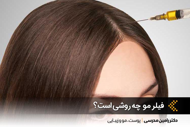 فیلر مو چیست؟ | تفاوت مزوتراپی و فیلر مو | کلینیک پوست در اصفهان