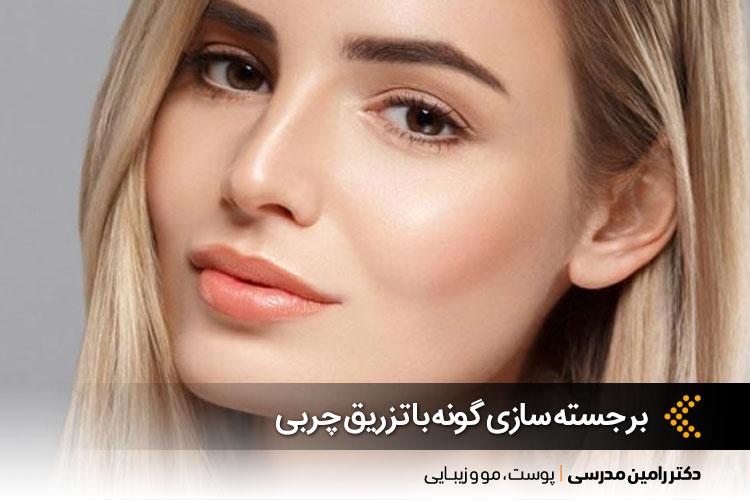 تزریق چربی بهترین روش برجسته سازی گونه | بهترین کلینیک پوست در اصفهان