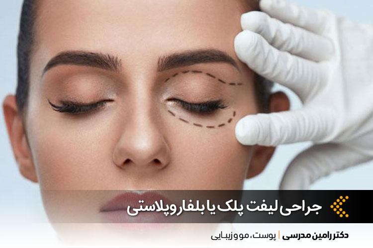 مهمترین نکات در جراحی لیفت پلک یا بلفاروپلاستی | کلینیک تخصصی پوست و مو و زیبایی در اصفهان
