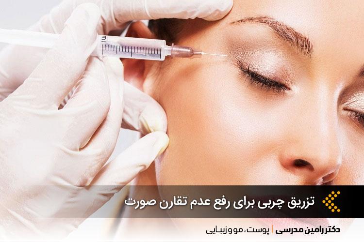 تزریق چربی برای رفع عدم تقارن صورت