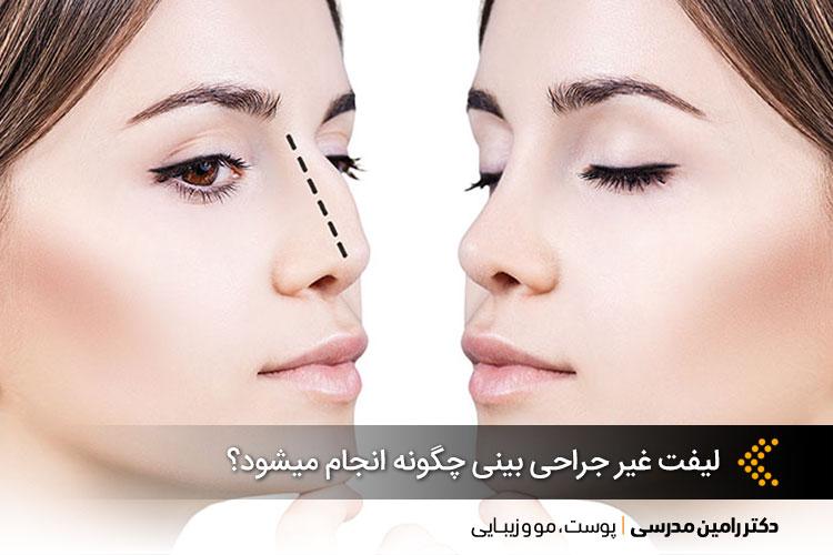 روشهای غیرجراحی لیفت بینی