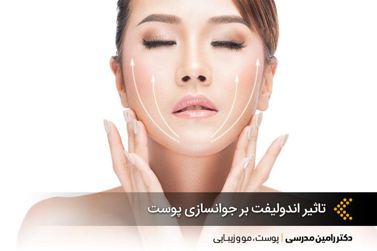 تاثیر اندولیفت بر جوانسازی پوست